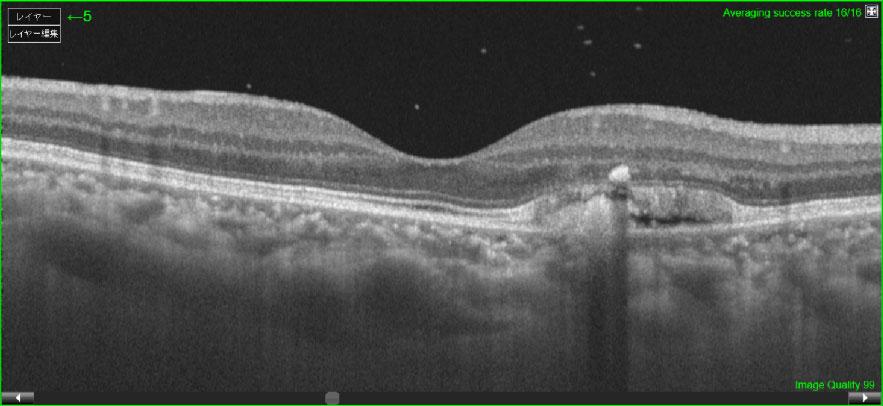 網膜層断面:滲出型加齢黄斑変性