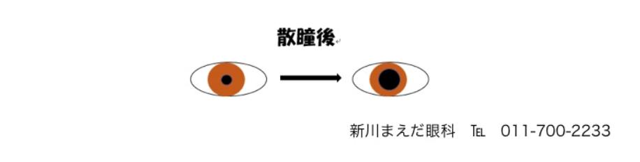 散瞳のイメージ